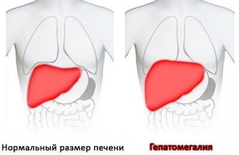 Гепатомегалии