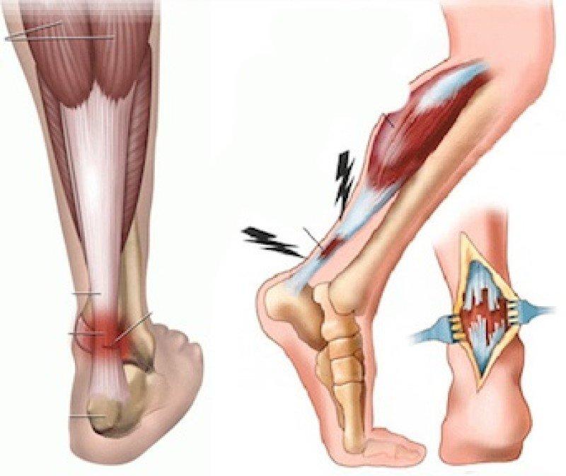 Крем для тела в области суставов и позвоночника
